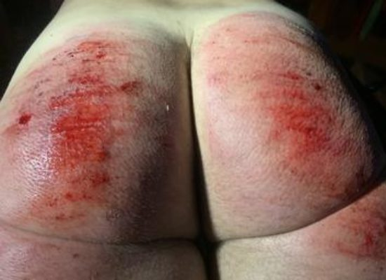 spanked raw
